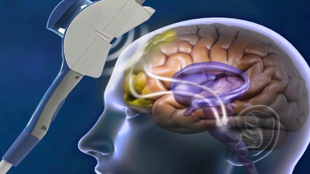 เทคโนโลยี TMS คืออะไร รักษาไมเกรนได้จริงหรือ gadgetมาใหม่ อัพเดทโลกไซเบอร์ เทคโนโลยีTMS